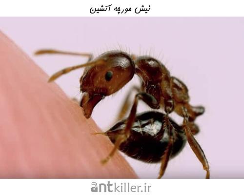 نیش مورچه های آتشین